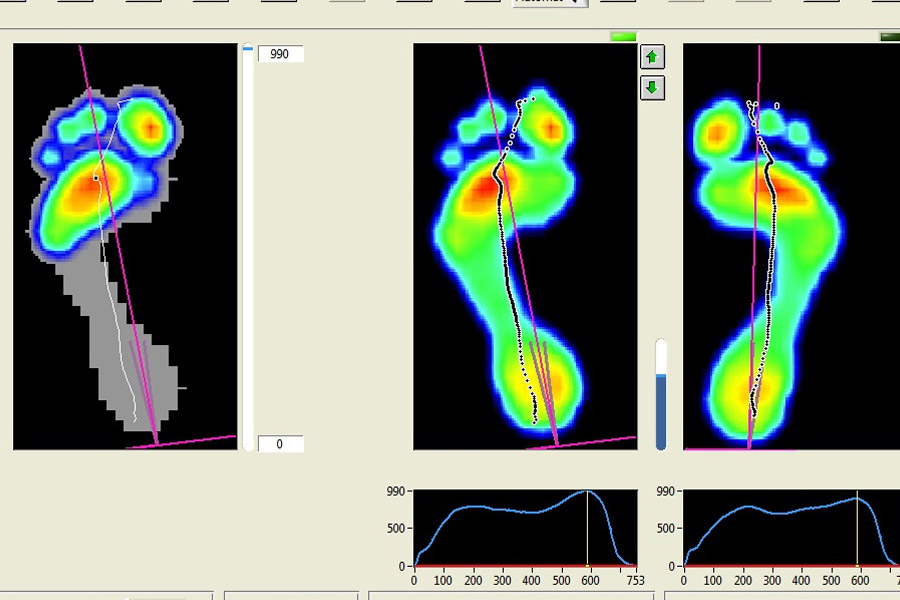 dynamic-gait-analysis